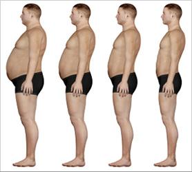 Weight Loss Doctor Orlando